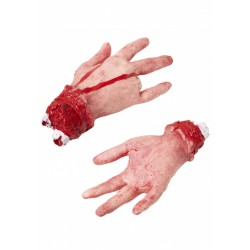 Odcięta dłoń z odciętym palcem